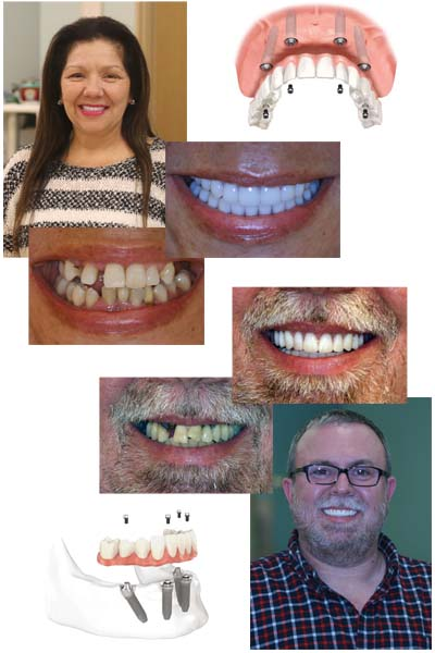 K1 Implant Choice - Home of All on 4