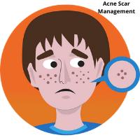 Acne Scar Management