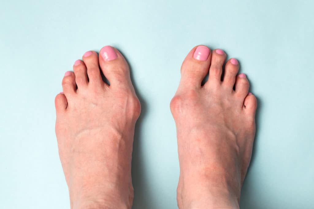 Bone on the foot. Hallux valgus disease
