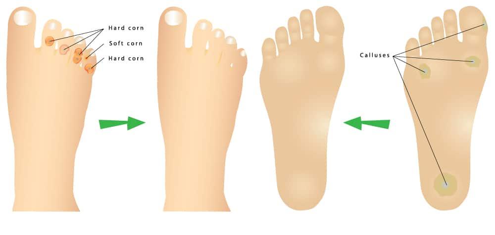 corns-and-callus-diagram