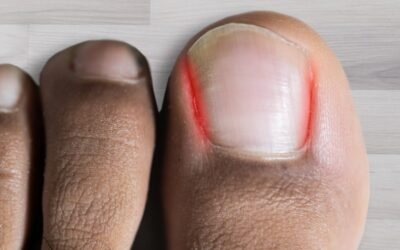 What Will Happen If I Don't Treat My Ingrown Toenail?