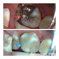 cosmetic fillings dentist in Santa Monica
