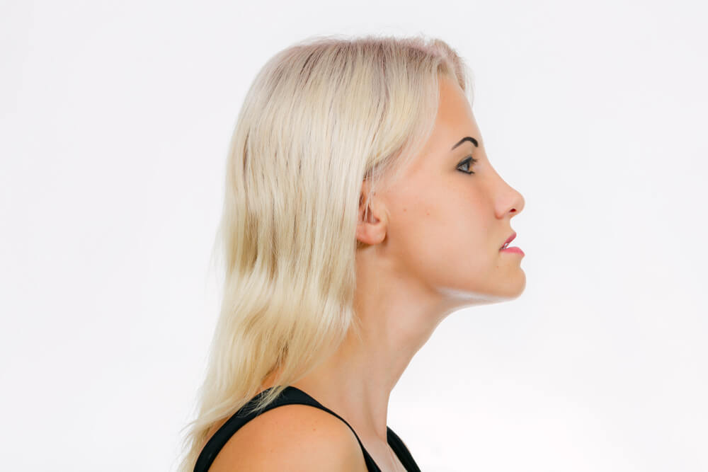 tmj exercises before and after