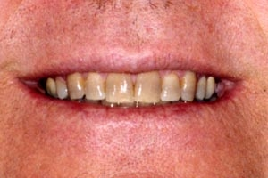 Are your teeth yellow like this?