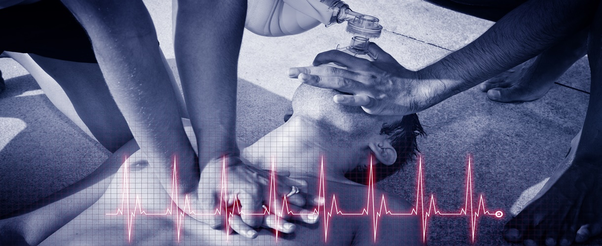 Cardiopulmonary resuscitation (CPR). Cardiogram concept.