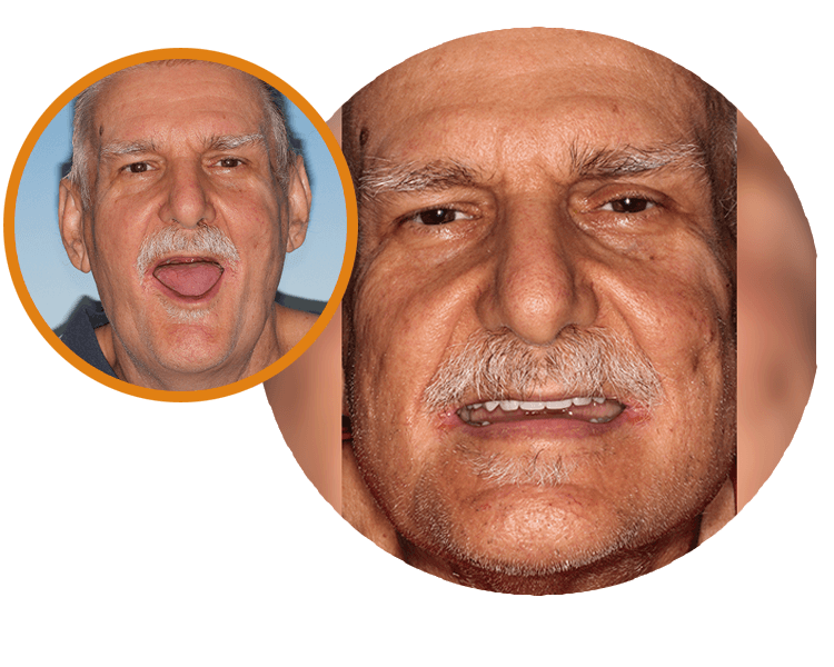 Bill opening his mouth wide to show he has no teeth and then an after image of his new teeth