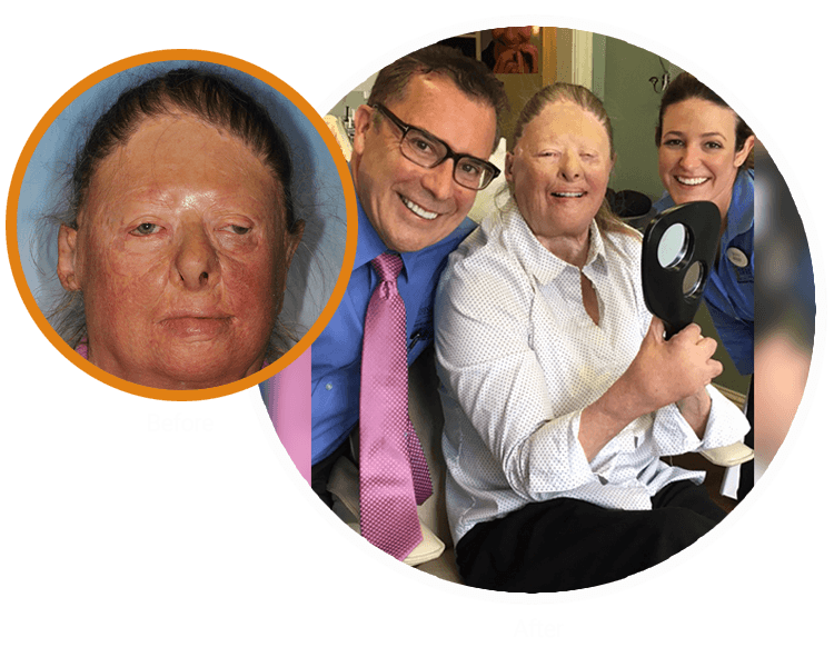Candace before and after her life-changing treatment from Dr. Randy Mitchmore