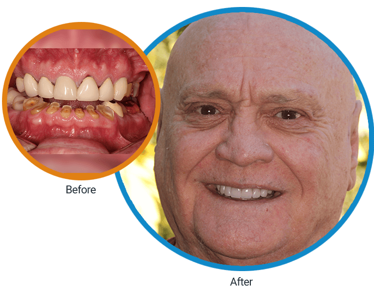 Split circles with one showing an extreme close-up of Clyde's teeth and the other showing the result achieved by Dr. Mitchmore