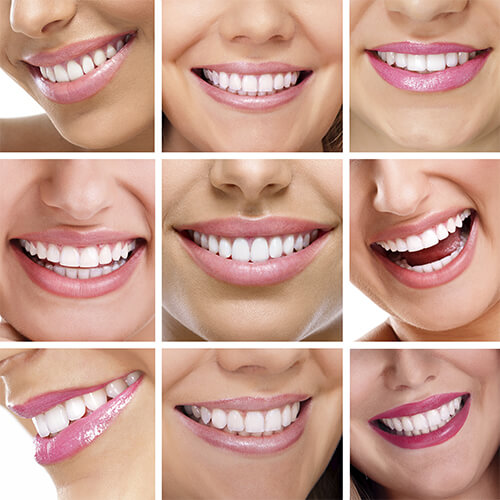 Grid showing nine different close-up smiles of attractive women