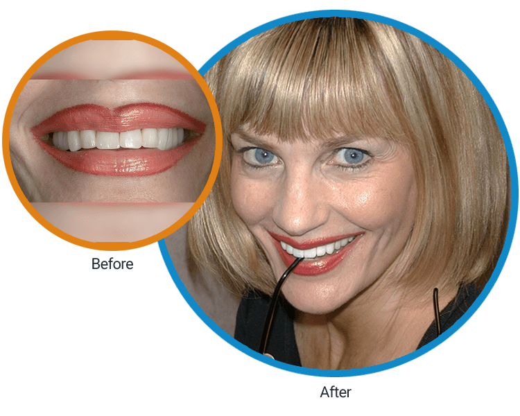 Close-up before of Diane's mouth and then an after of her smiling and sipping on a drink