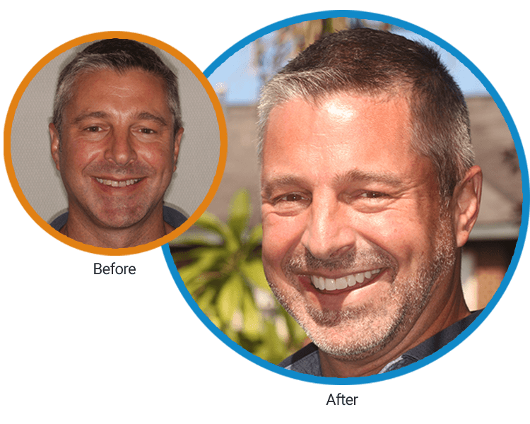 Before and after of John, who is a happy and satisfied patient at LifeSmiles