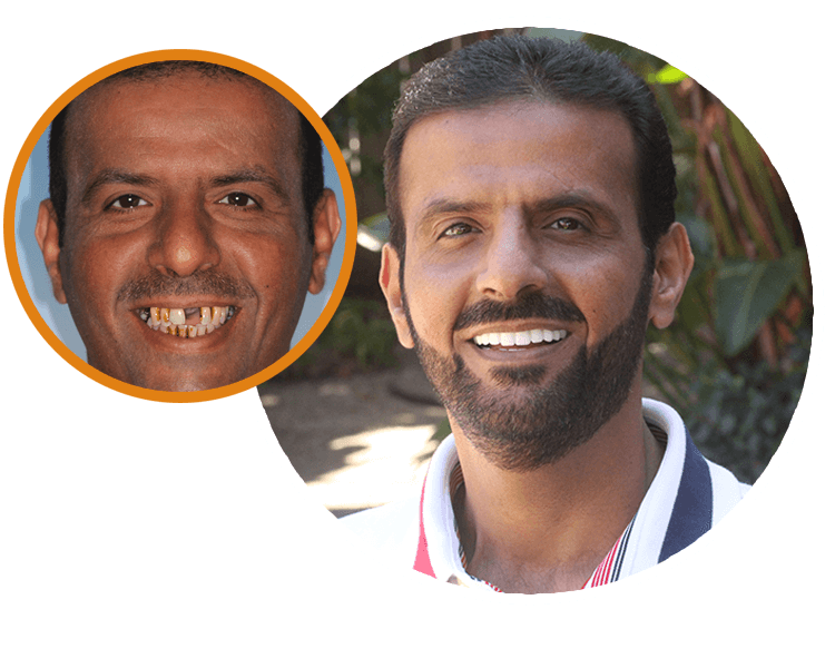 Mansor smiling with missing teeth and Mansor smiling with a new set of beautiful pearly whites