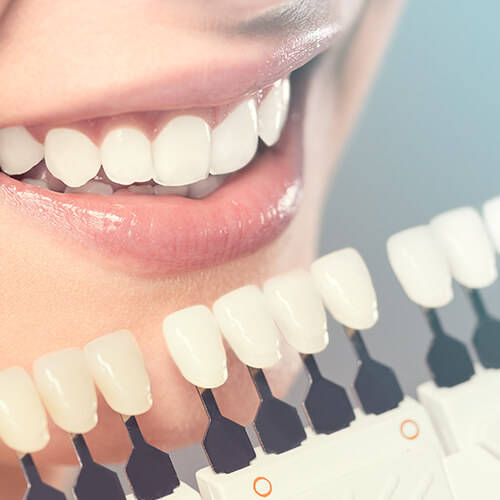A woman's smiling begin compared to artificial teeth to find a color match for her veneers