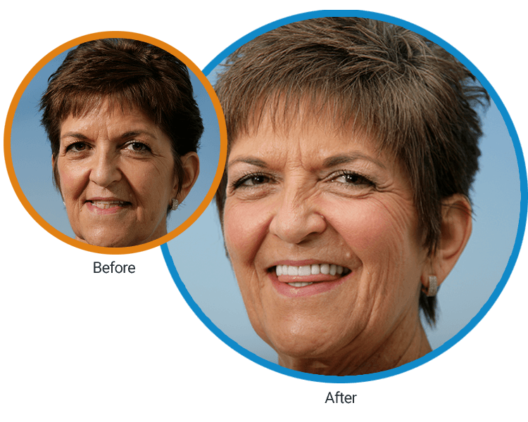 Before and after photos of Ms. Garica, who has a new smile thanks to Dr. Randy Mitchmore
