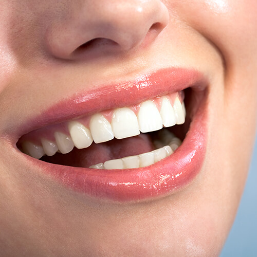 Close-up of a woman's smile as she shows off her new teeth and shimmering gums