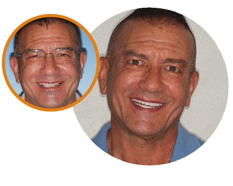 Before of Steve's smile while wearing glasses and then the results of his treatment at LifeSmiles