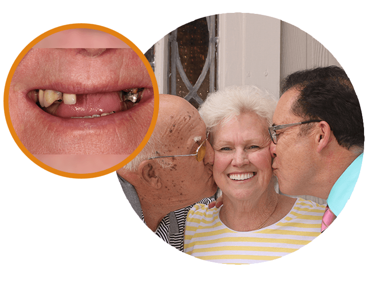 Extreme close-up of Sue's smile and then next to it a great shot of her husband and Dr. Mitchmore kissing each cheek