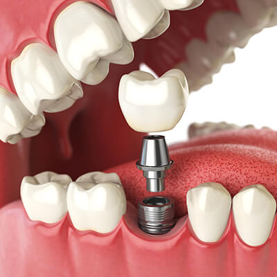 A close-up of an artificial dental implant in Houston ready to be placed into the mouth