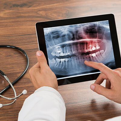 Your dentist in CITY provides sedation dentistry