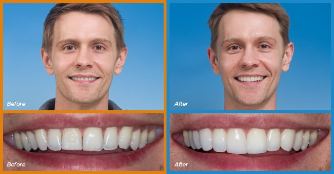 Eric's before and after smile who become a cosmetic dentistry candidate