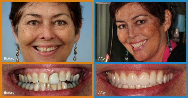 Tila's before and after smile who become a cosmetic dentistry candidate