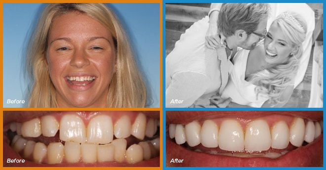 Kristan's before and after smile who become a cosmetic dentistry candidate