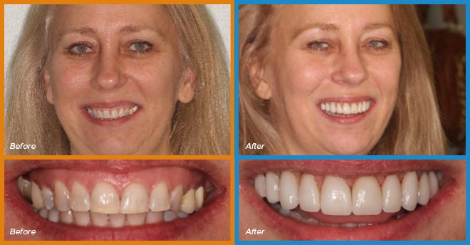 Janet's before and after smile who become a cosmetic dentistry candidate