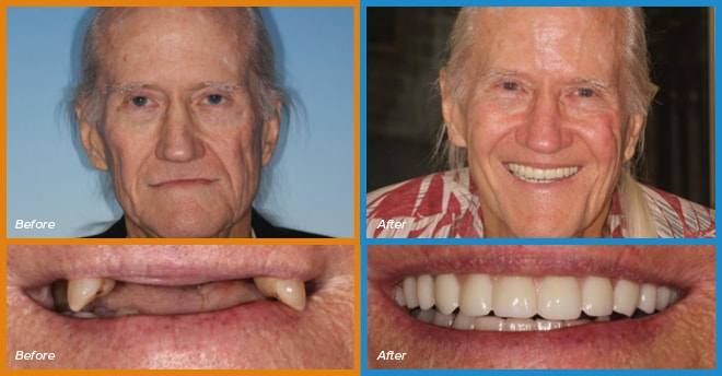 Earl's before and after smile who become a cosmetic dentistry candidate