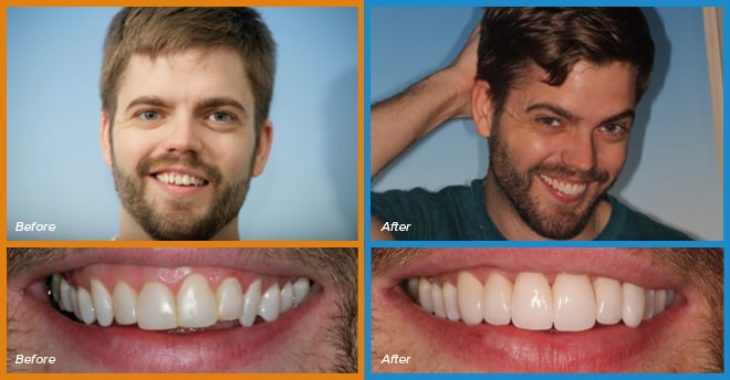 A actual patient's before and after smile who become a cosmetic dentistry candidate