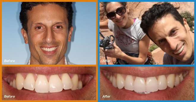 Jarred's before and after smile who become a cosmetic dentistry candidate