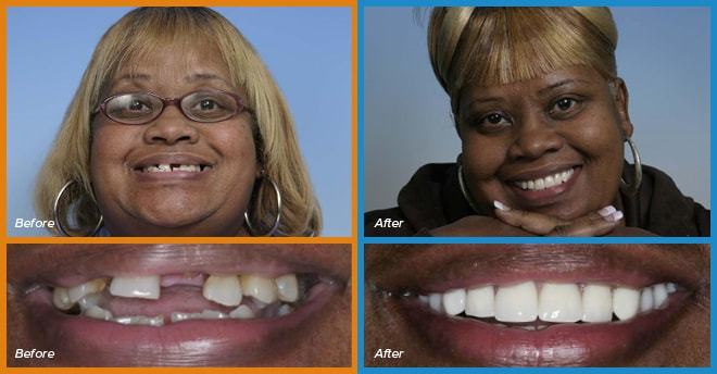 Diane's before and after smile who become a cosmetic dentistry candidate