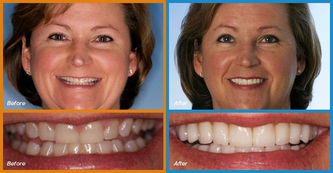 A real patient's before and after smile who become a cosmetic dentistry candidate