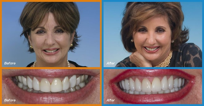 Elena's before and after smile who become a cosmetic dentistry candidate