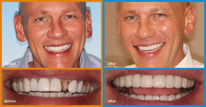 Michael's before and after smile who become a cosmetic dentistry candidate