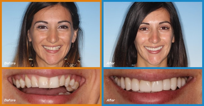 Pam's before and after smile who become a cosmetic dentistry candidate
