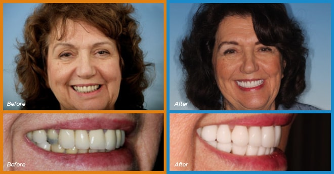 Norma's before and after smile who become a cosmetic dentistry candidate