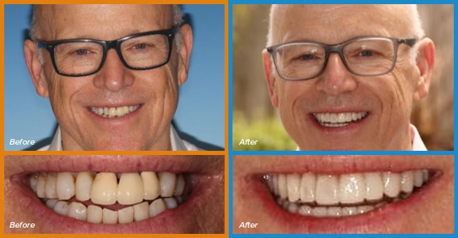 Fred's before and after smile who become a cosmetic dentistry candidate