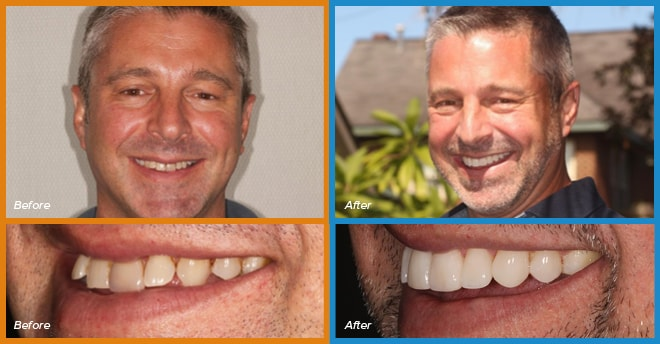 John's before and after smile who become a cosmetic dentistry candidate