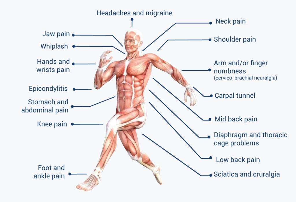 Headaches and migraine, neck pain, shoulder pain, arm and/or finger numbness (cervico-brachial neuralgia), carpal tunnel, mid back pain, diaphragm and thoracic cage problems, low back pain, sciatica and cruralgia, foot and ankle pain, knee pain, stomach and abdominal pain, epicondylitis, hands and wrists pain, Whiplash, jaw pain,  chronic pain, posture problem, reduced mobility, lack of mobility.