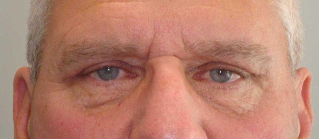 AFTER: Upper Blepharoplasty