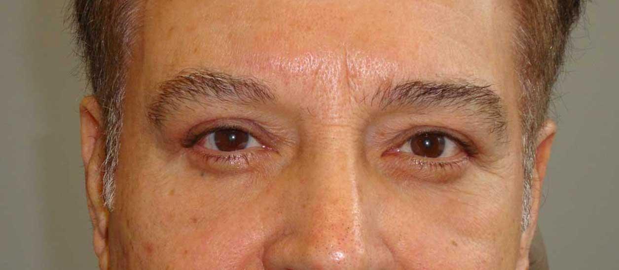 AFTER: Upper & Lower Blepharoplasty