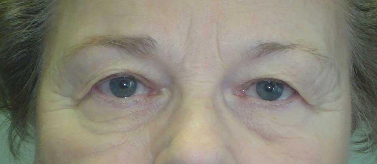 BEFORE: Midface Lift Dr. Gossman MD