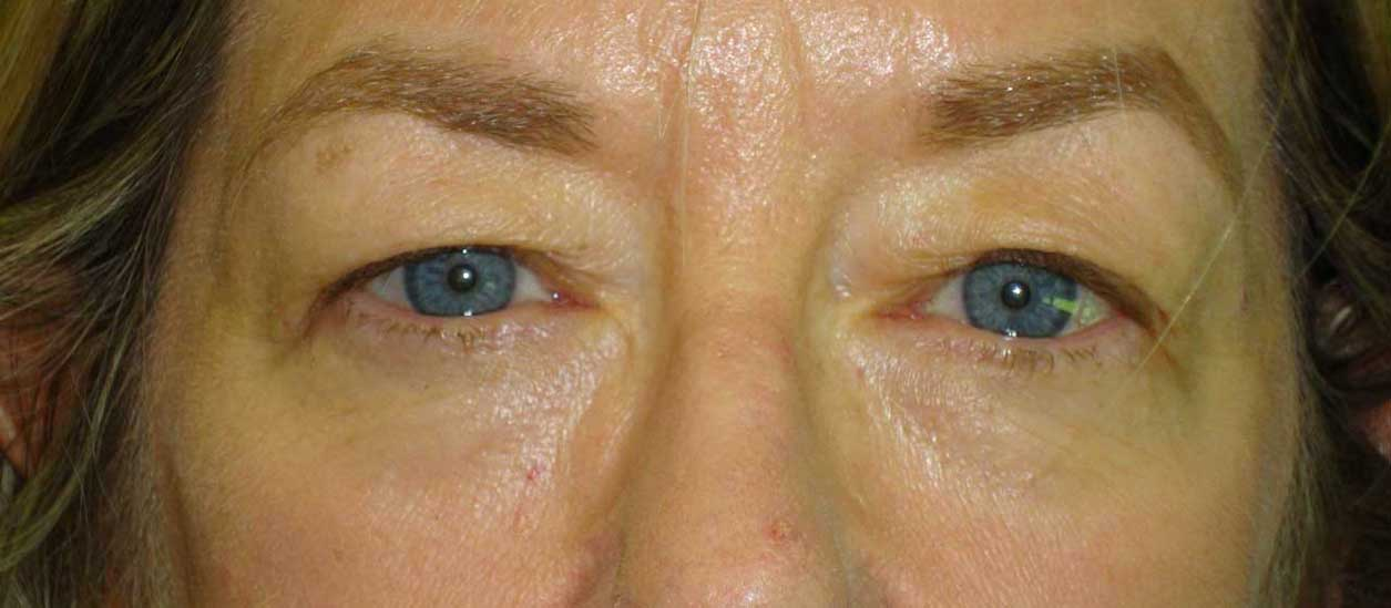 BEFORE: Upper Blepharoplasty