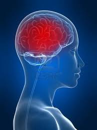 Blood pooled in brain, causing a migraine