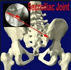 SI-Joint-Injection-use-this