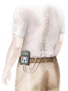 Spinal Cord Stimulator Trial