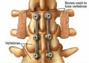 Spinal-fusion-300x212