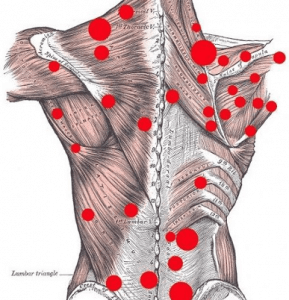 Trigger point diagram