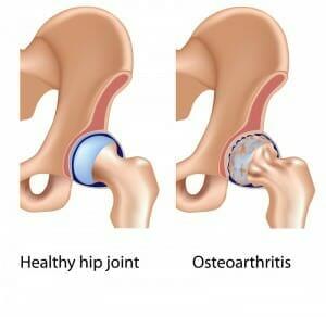 hip arthritis picture
