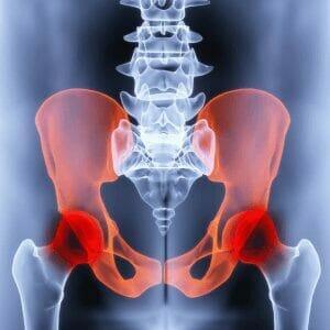 pelvic pain2